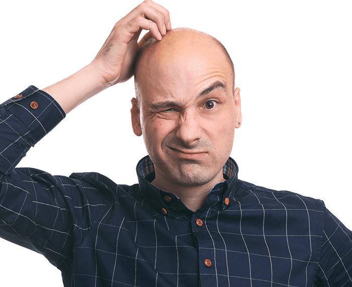 ¿Trasplante Capilar? ¡10 Preguntas para Aclarar Todas tus Dudas!