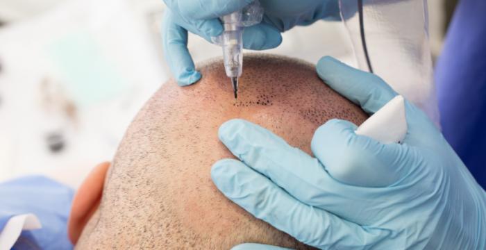 Micropigmentación Capilar: ¿Una alternativa al Trasplante de Cabello?