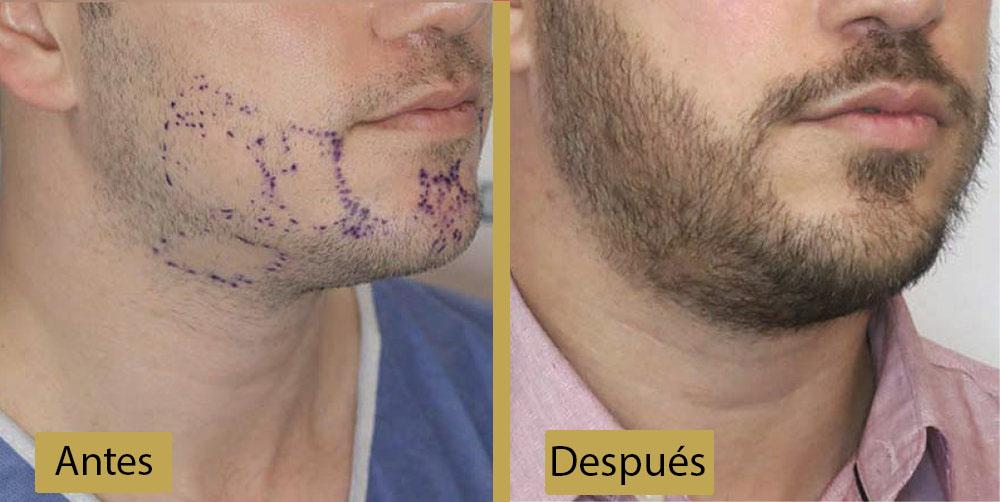 Recuperación luego del Trasplante de Barba | Preguntas Frecuentes