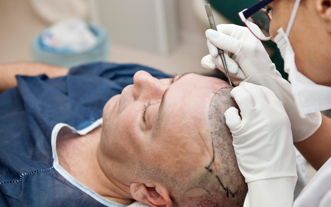 ¿El Costo del Implante Capilar Influye en el Resultado?