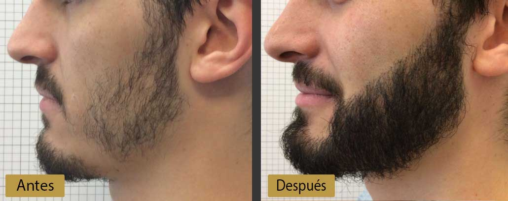 ¿Alopecia en la Barba? ¡Todo lo que necesitas saber para Solucionarla!