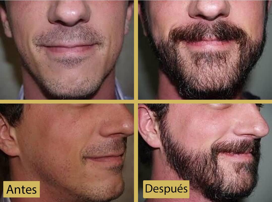 ¿Cuánto Cuesta un Implante de Barba en el Perú?