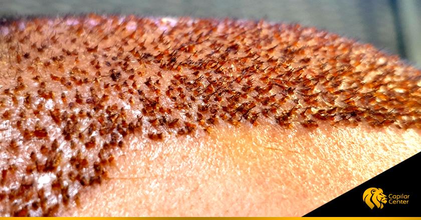 Cuidados para las Cicatrices Capilares