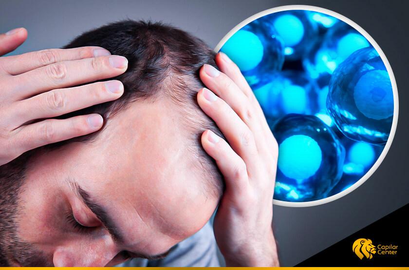 ¿Inicio de la pérdida de cabello? ¡Células Madre es lo que tú necesitas!