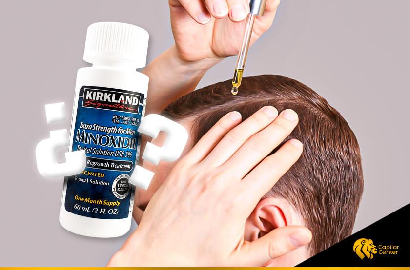 ¿Minoxidil como solución efectiva a la alopecia?
