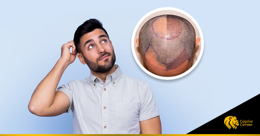 ¿Cuánto cuesta una cirugía de implante capilar?